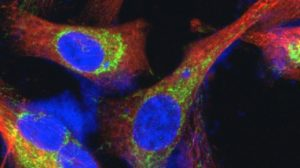 A picture of fluorescent-labeled breast cancer cells. (Submitted photo)